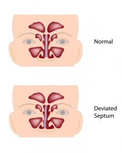 Los Angeles Deviated Septum Surgery.