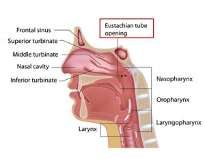 Los Angeles Eustachian Tube Dysfunction Surgeon